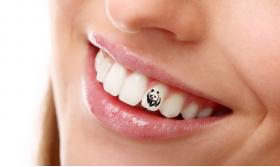 TEETH TATTOOS – THE LATEST IN COSMETIC DENTISTRY - Bimedis - 1
