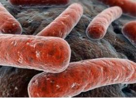 DIAGNOSING TUBERCULOSIS DURING A DENTAL EXAM - Bimedis - 1