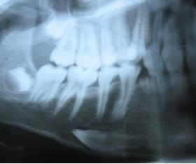 TOOTH IMPACTION - Bimedis - 1