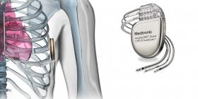 MEDTRONIC LAUNCHED NEW DEVICES FOR THE TREATMENT OF HEART FAILURE - Bimedis - 1