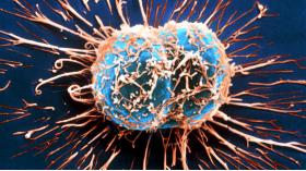 GOLD NANOPARTICLES ARMED WITH SPECIAL PEPTIDE ARE EFFICIENT CANCER KILLERS - Bimedis - 1