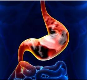 A BREATH TEST TO FIND AND PREDICT STOMACH CANCER - Bimedis - 1